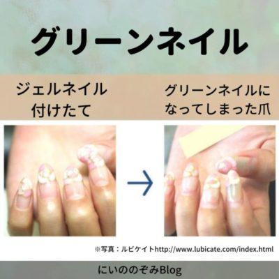 爪の病気「グリーンネイル」とは?