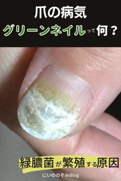 グリーンネイルの原因「爪が緑色に!」緑膿菌の爪の病気になった時の対処法